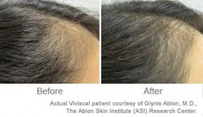 Thyroid And Hair Loss Viviscal Healthy Hair Tips