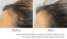 Excess Sebum & Hair Loss - We Know the Answer | Viviscal Healthy