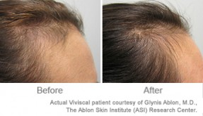 Zinc for Healthy Hair Growth | Viviscal Healthy Hair Tips