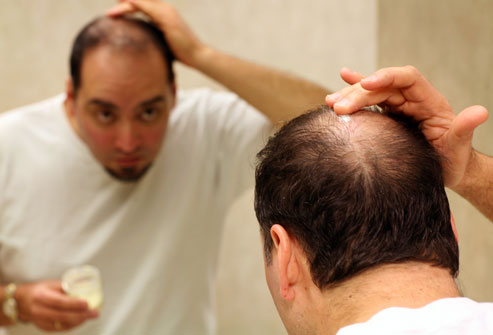 hair regrowth treatments for men