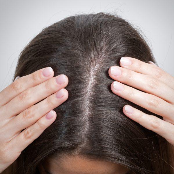hair part woman hands scalp thinning brunette hereditary hair loss explained Viviscal blog