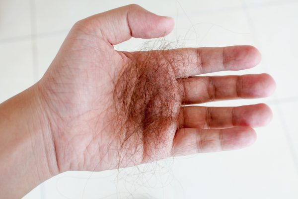 hair loss in hand shedding telogen effluvium hair loss viviscal hair blog