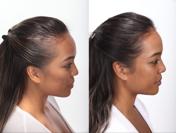 before after photos woman side view hair growth results what to look for in a hair growth supplement viviscal hair blog