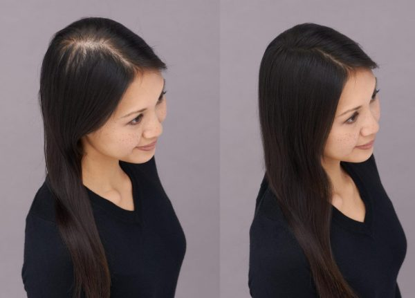 before after photos Asian woman user Toppik hair fibers viviscal hair blog