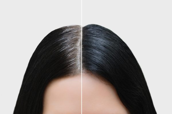 Is it possible to slow down gray hair growth?