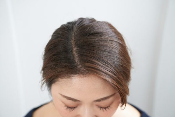 scalp treatment for thinning hair